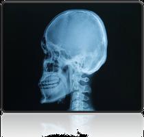 rentgen czaszki