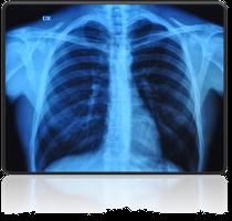rentgen klatki piersiowej