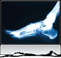 rentgen stopy